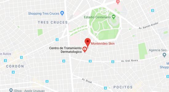 mapa Montevideoskin